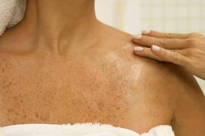 applying Aloe Vera on skin